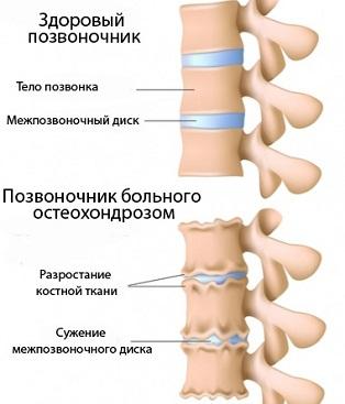 Лечение суставов всеверодонецке разрыв сухожилия коленного сустава лечение